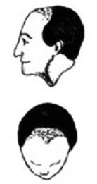 Hair Replacement System Cesare Ragazzi Laboratories