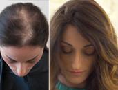 Solutions For Hair Loss Baldness Hair Enhancement Cesare