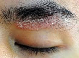 Trattamento di antibiotici di eczema