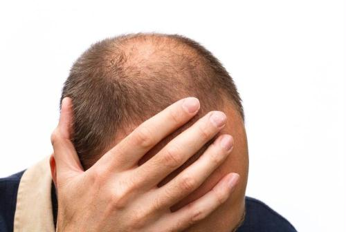 Motivi caduta capelli uomo