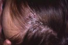 Eczema di bambini circa un anno