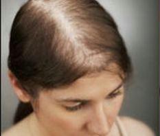 Premature Hair Loss